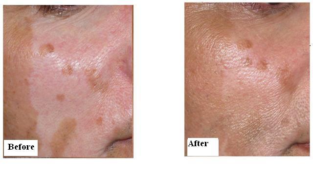 1541308979-vitiligo11.jpg